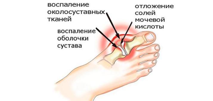 Псориатический артрит лечение в домашних условиях