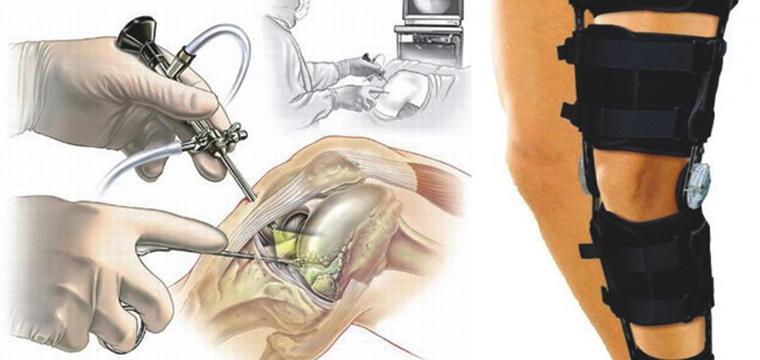 Артоскопическое обследование суставов что такое остеомиелит тазобедренного сустава