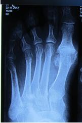 Артроз плюснее-фалангового сустава колено опухло болит мази