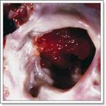 опухоли женских половых органов