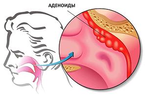 Причины возникновения аденоидов у взрослых