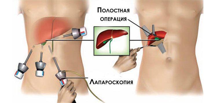 Удаление желчного пузыря: как проходит операция